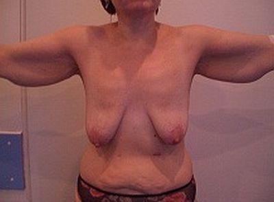Кожа, возниклиу некоторых подбородок провис после обвисшей после похудения