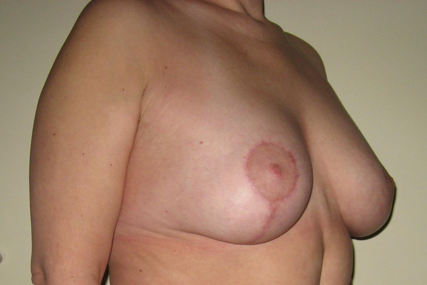 Операция по уменьшению груди - редукционная маммопластика. Коррекция формы