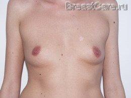 Гормоны увеличить грудь