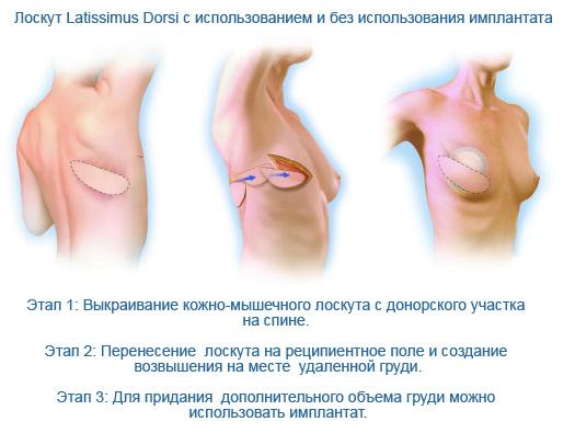 Уплотнение после маммопластики